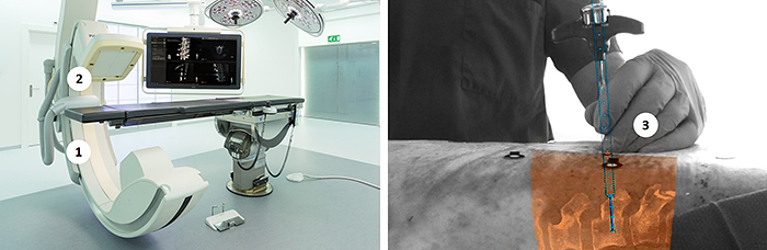 article-Philips-Surgical-Navigation-Technology-based-on-Augmented-Reality-3.jpg