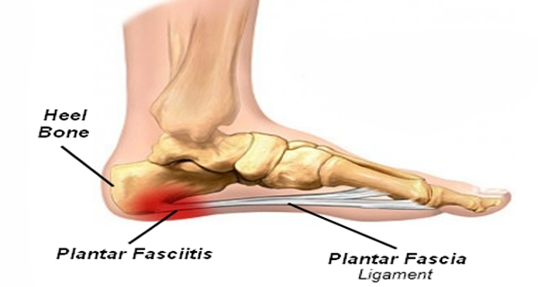plantar-fasciitis-or-joggers-heel-how-to-get-rid-of-the-pain-in-the-heel-600x320.png