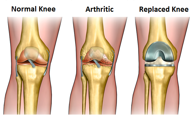 total-knee-replacement-medifee-1.png