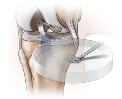 knee_illustration_04-2.png