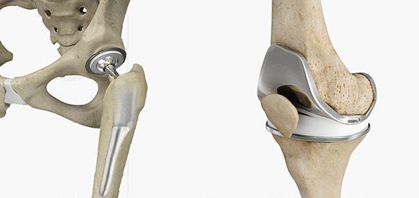 hip-and-knee-replacement-12bto-2.jpg
