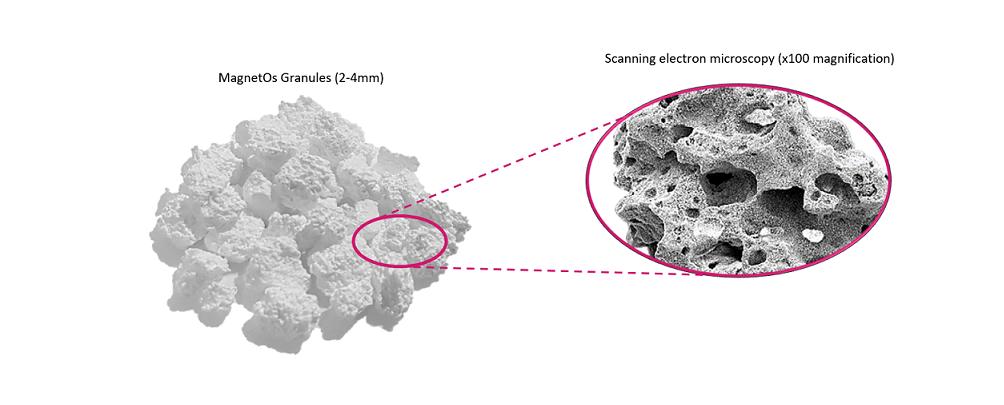 MagnetOs-Granules-Product-Shot-1-btorui.png